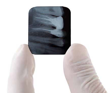 dental practice x-rays